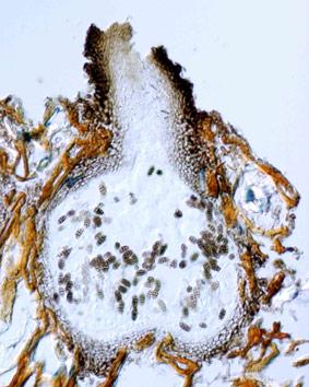 pleosporaascoma.jpg